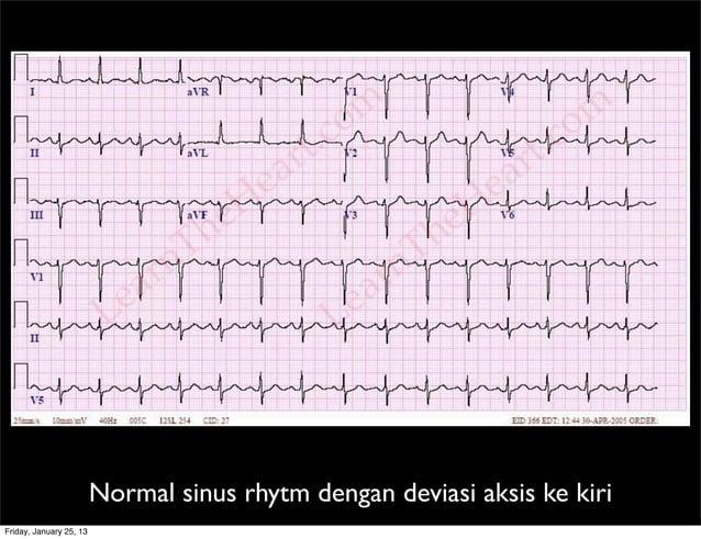 Normal sinus rhytm dengan deviasi aksis ke kiri Friday, January 25, 13