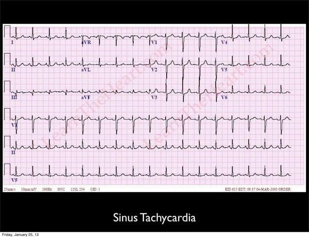 Sinus Tachycardia Friday, January 25, 13