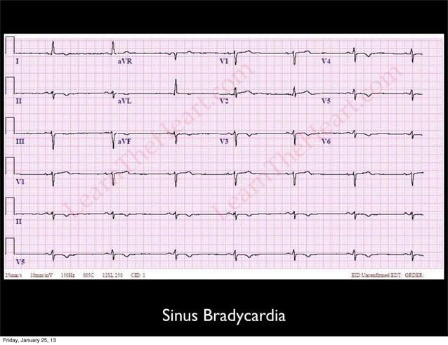 Sinus Bradycardia Friday, January 25, 13