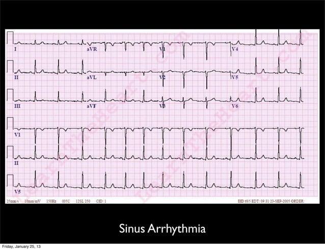 Sinus Arrhythmia Friday, January 25, 13