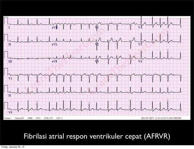 Fibrilasi atrial respon ventrikuler cepat (AFRVR) Friday, January 25, 13