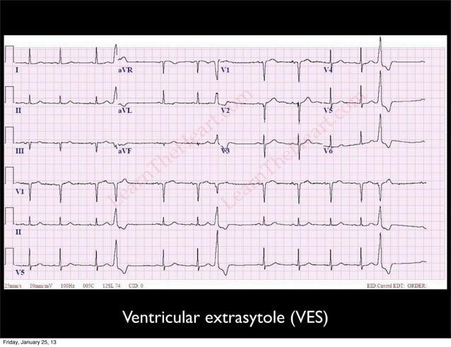 Ventricular extrasytole (VES) Friday, January 25, 13