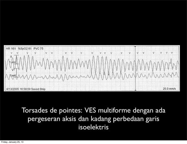 Torsades de pointes: VES multiforme dengan ada pergeseran aksis dan kadang perbedaan garis isoelektris Friday, January 25,...