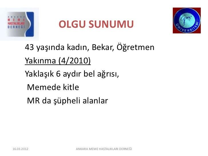 OLGU SUNUMU       43 yaşında kadın, Bekar, Öğretmen       Yakınma (4/2010)       Yaklaşık 6 aydır bel ağrısı,        Memed...