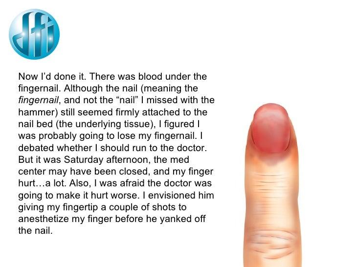 Mending A Smashed Finger