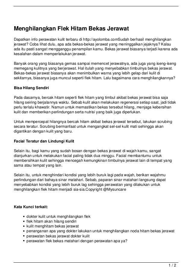 Menghilangkan Flek Hitam Bekas JerawatDapatkan info perawatan kulit terbaru di http://ayolomba.comSudah berhasil menghilan...