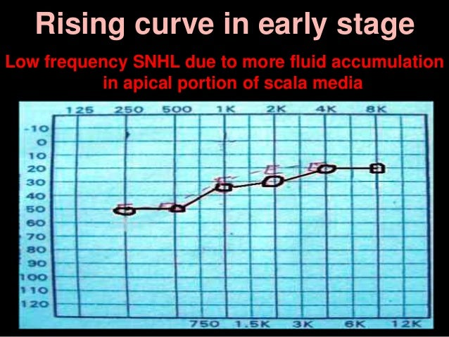 Rising curve in early stage Low frequency SNHL due to more fluid accumulation in apical portion of scala media