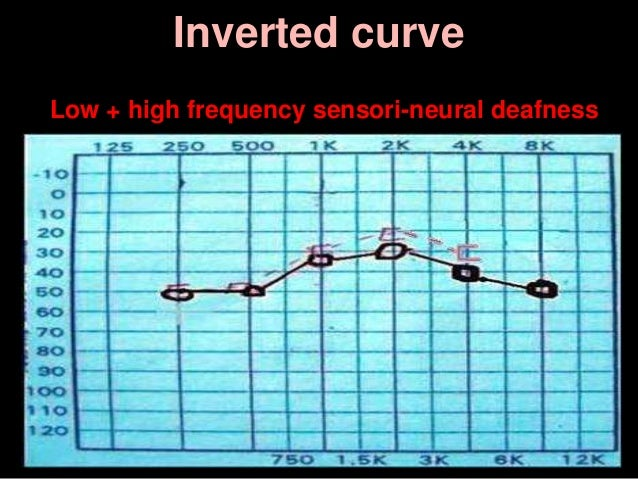 Inverted curve Low + high frequency sensori-neural deafness