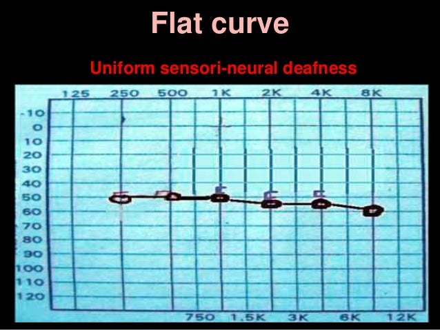 Flat curve Uniform sensori-neural deafness
