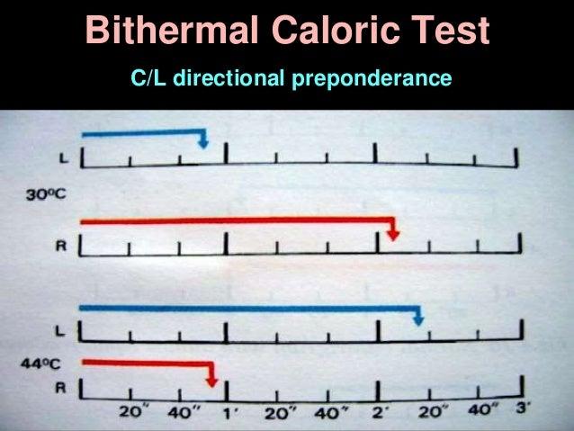 Bithermal Caloric Test C/L directional preponderance