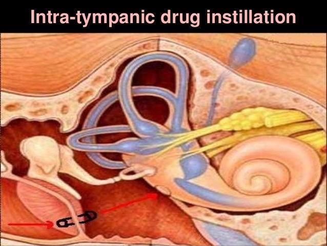 Intra-tympanic drug instillation