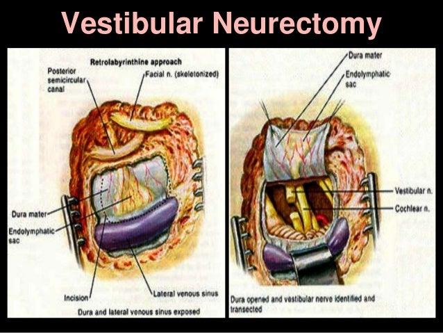 Vestibular Neurectomy
