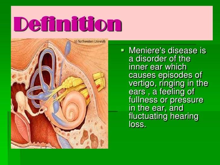 Meniere S Disease