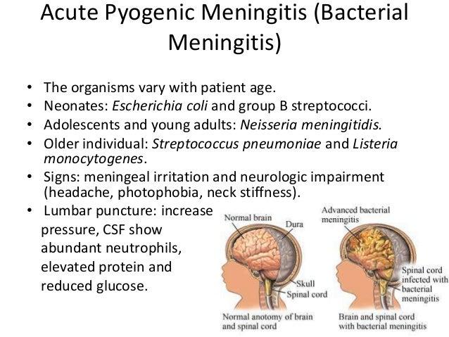 Viral Meningitis  Meningitis Research Foundation
