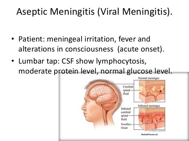 meningitis, Human Body