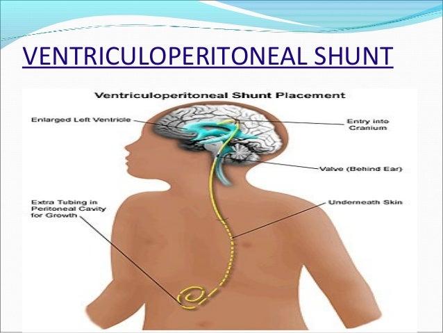 pediatric nursing (neurology), Skeleton