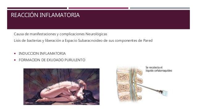SX.MENINGEO  Cefalea: intensa y constante, a veces con carácter pulsátil; generalizada o de localización frontal u occipi...