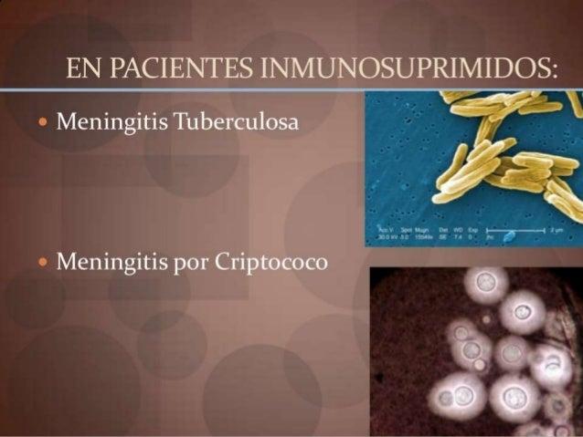 COMPLICACIONES  Colección subdural  Empiema subdural  Absceso cerebral  Septicemia  Estado comatoso