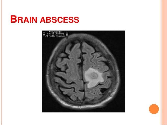 meningitis brain abscess