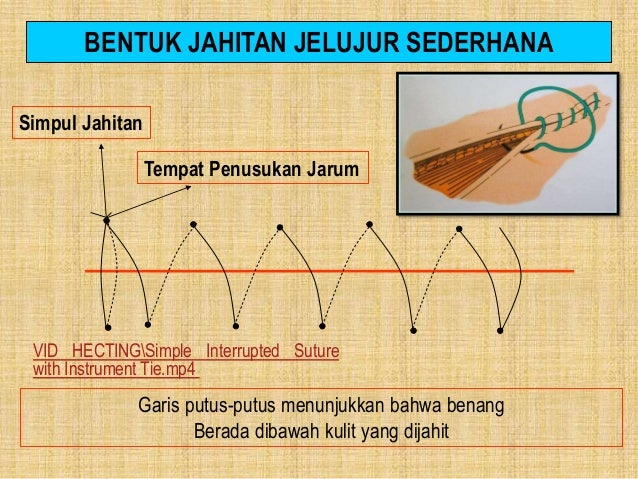 5. JAHITAN JELUJUR INTRAKUTAN Jahitan jelujur yang dilakukan dibawah kulit, jahitan ini terkenal menghasilkan kosmetik yan...