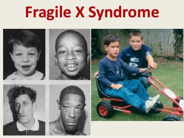 a study on fragile x syndrome Fragile x syndrome is the name given to this condition because some affected individuals have an x chromosome that looked as if it had broken or was the development of animal models for fragile x syndrome studies over the last two decades resulted in great anticipation that effective drug.