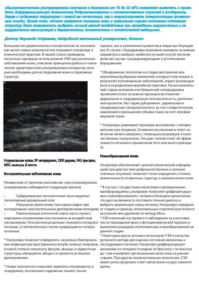 Ультразвуквое исследование кожи Slide 2