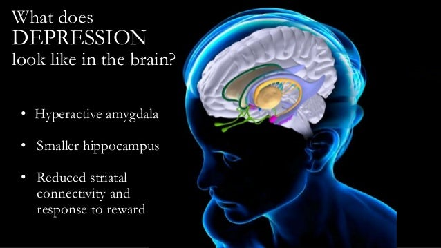 Adolescent depression what we all should know brain still under construction 20 what does depression ccuart