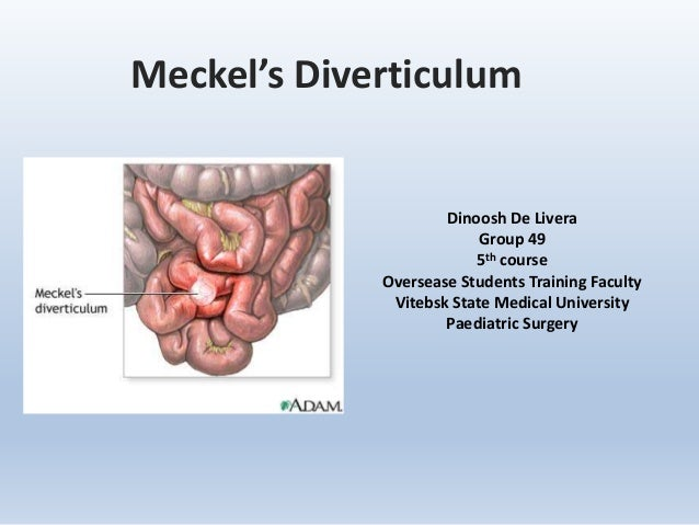 Meckel's Diverticulum Dinoosh De Livera Group 49 5th course Oversease Students Training Faculty Vitebsk State Medical Univ...