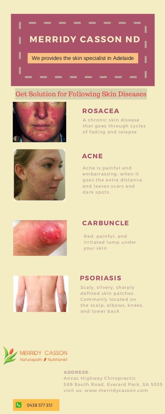 Get The Best Skin Specialist