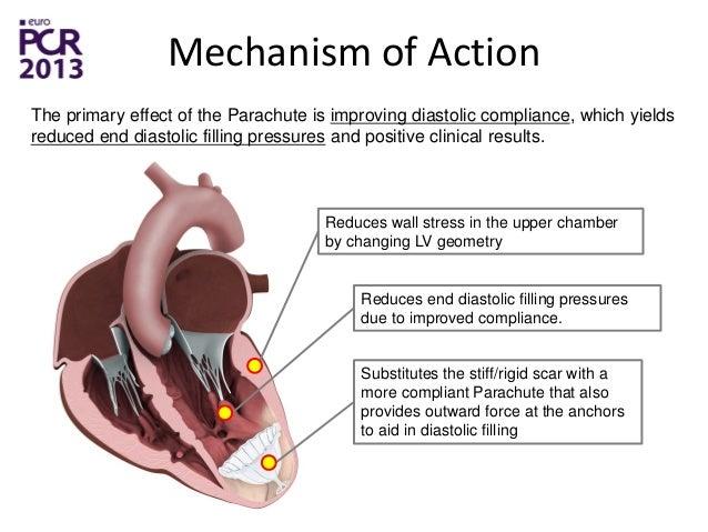 CardioKinetix Announces the 500th Parachute Heart Failure ...