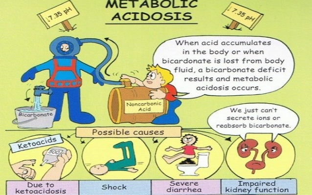metabolic acidosis by akram, Skeleton