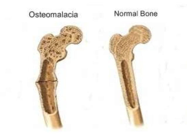bone disease Bones which support the patient's weight such as spine, leg and hip bones are the most frequently fractured bones in a patient with osteoporosis over time, the bone loss can become debilitating, as might the fractures associated with the disease.