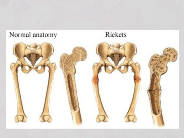 Rickets In Babies