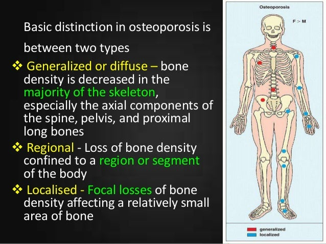 21++ How does osteoporosis affect the musculoskeletal system info