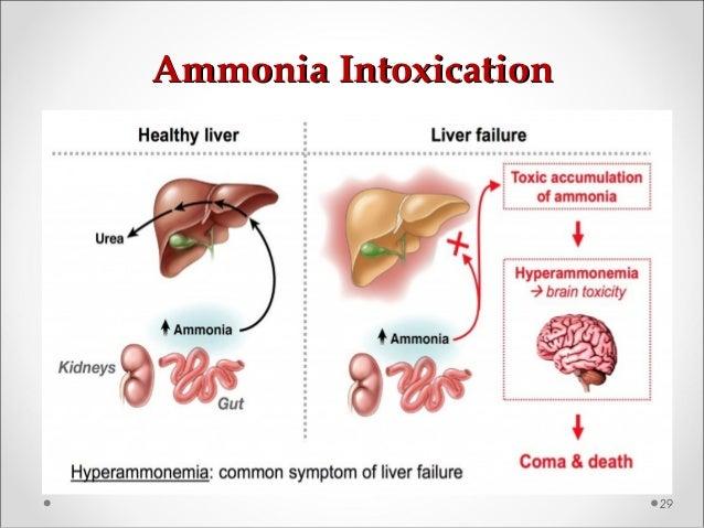 Ammonia IntoxicationAmmonia Intoxication 29