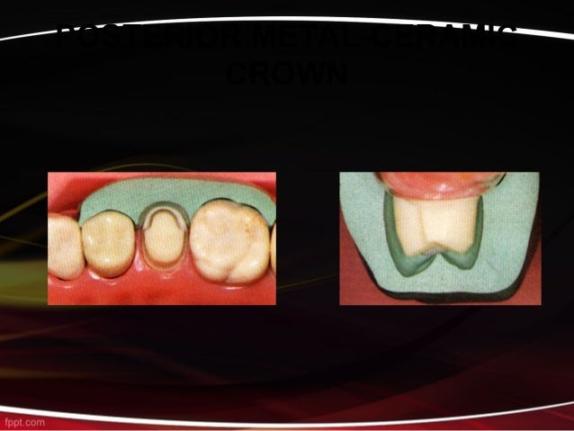 Tooth preparation for Metal ceramic crowns.