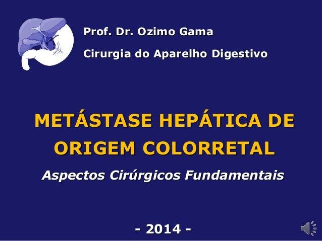 METÁSTASE HEPÁTICA DE ORIGEM COLORRETAL Aspectos Cirúrgicos Fundamentais - 2014 - Prof. Dr. Ozimo Gama Cirurgia do Aparelh...