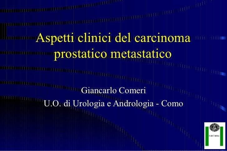 Aspetti clinici del carcinoma   prostatico metastatico           Giancarlo Comeri U.O. di Urologia e Andrologia - Como