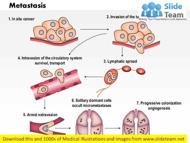 Metastasis medical images for power point