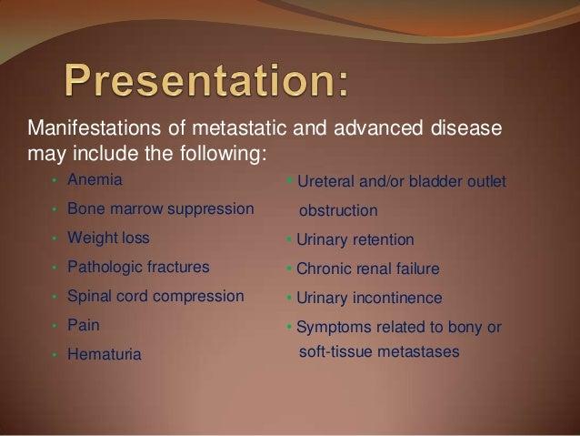 Investigation and management of prostate cancer ppt download.