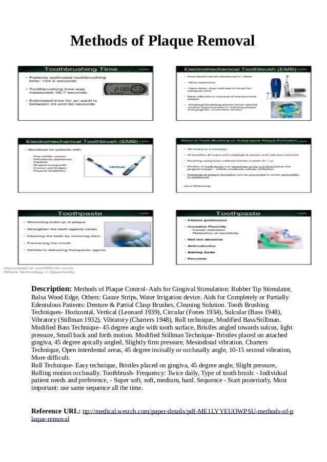 Methods of Plaque Removal Description: Methods of Plaque Control- Aids for Gingival Stimulation: Rubber Tip Stimulator, Ba...