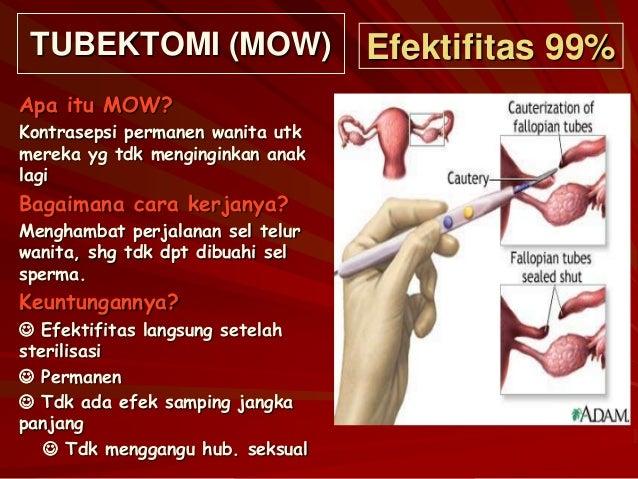 post vasektomi sperma