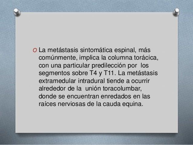 O La metástasis sintomática espinal, más  comúnmente, implica la columna torácica,  con una particular predilección por lo...