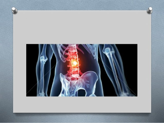 Metástasis espinal sintomática