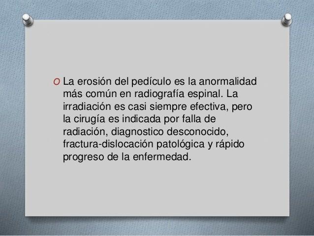 O La erosión del pedículo es la anormalidad  más común en radiografía espinal. La  irradiación es casi siempre efectiva, p...