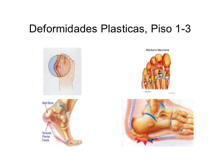 Deformidades Plasticas, Piso 1-3