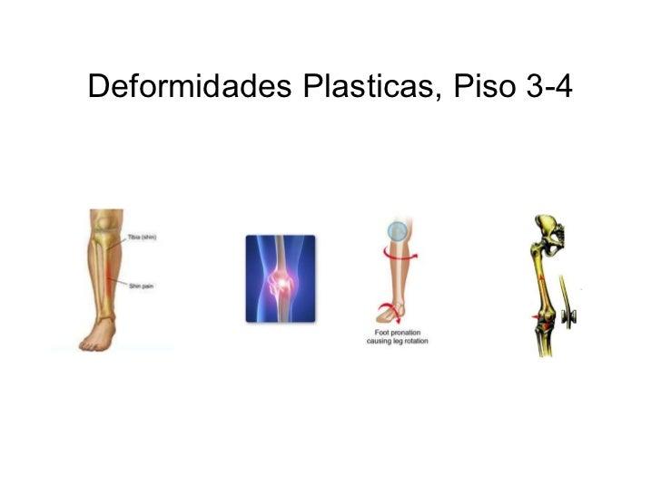 Deformidades Plasticas, Piso 3-4