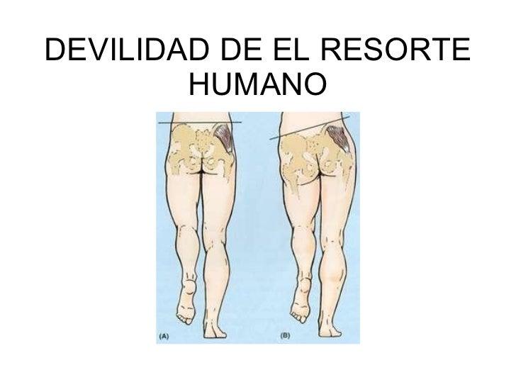 DEVILIDAD DE EL RESORTE HUMANO