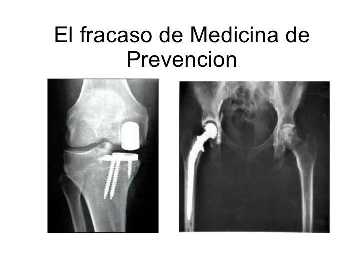 El fracaso de Medicina de Prevencion