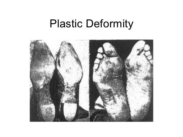Plastic Deformity